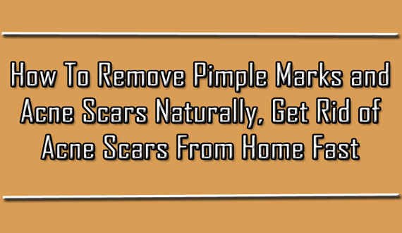 How to Remove Pimple Marks and Acne Scars Naturally